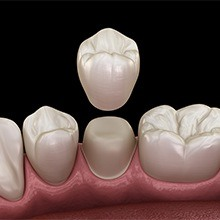 Aniamted dental crown placement
