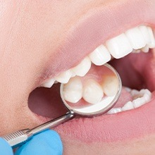 Dentist examining patient's metal free dental restoration