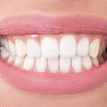 Flawless smile following gum recontouring reatment