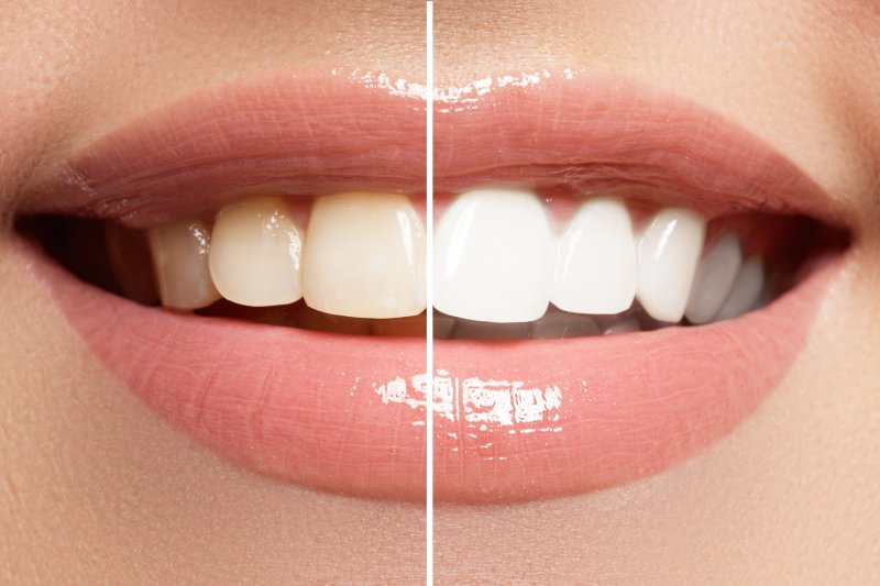 Close-up of smile before and after whitening